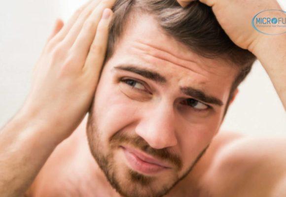 Tratamientos capilares contra la calvicie