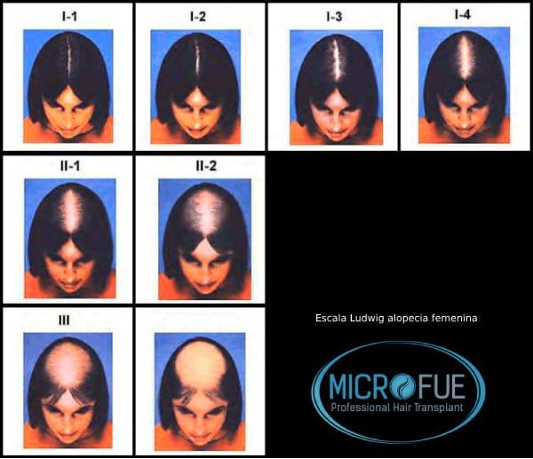 escala_ludwig_alopecia_calvicie_femenina_trasplante_capilar_Turquia