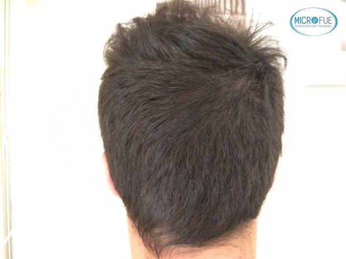 injerto capilar trasplante de pelo en Turquia FUE Microfue (1)