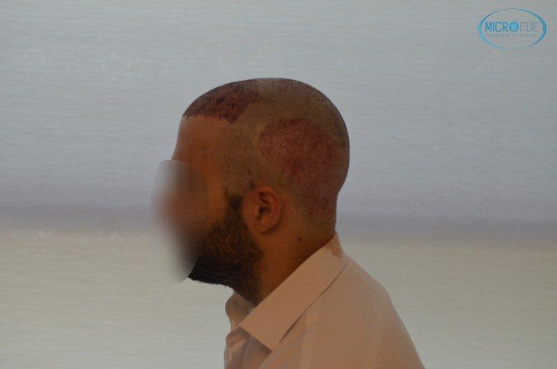 injerto capilar trasplante de pelo en Turquia FUE Microfue (10)