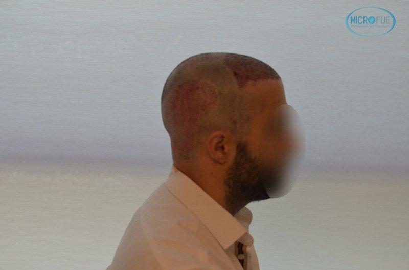 injerto capilar trasplante de pelo en Turquia FUE Microfue (11)