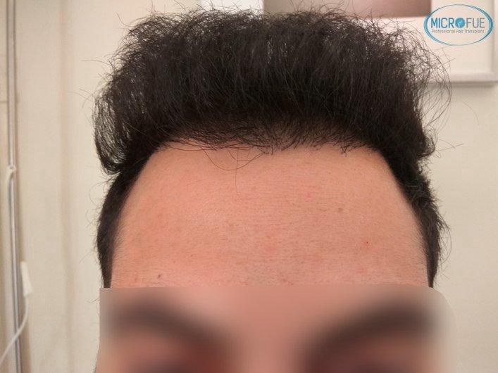 injerto capilar trasplante de pelo en Turquia FUE Microfue (13)