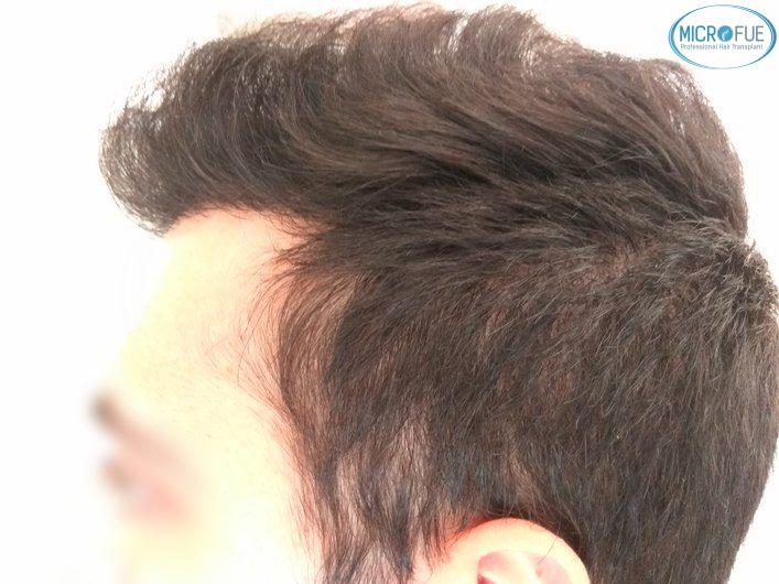 injerto capilar trasplante de pelo en Turquia FUE Microfue (14)