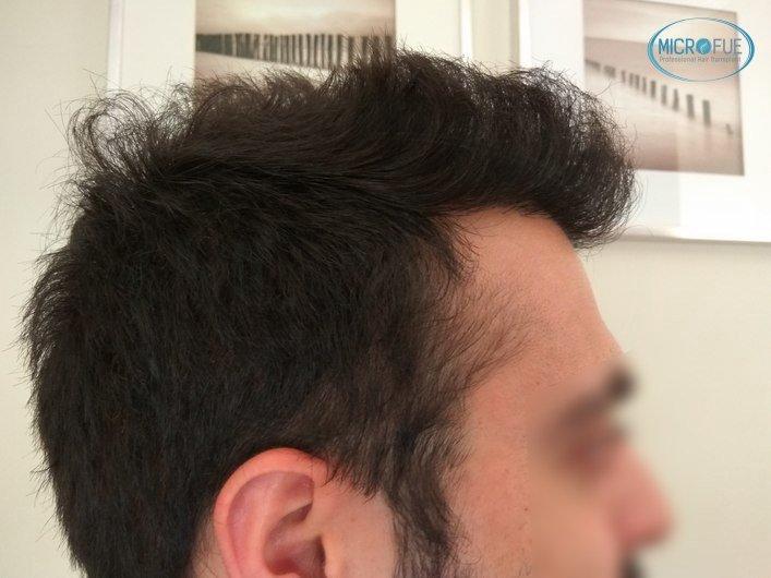 injerto capilar trasplante de pelo en Turquia FUE Microfue (15)