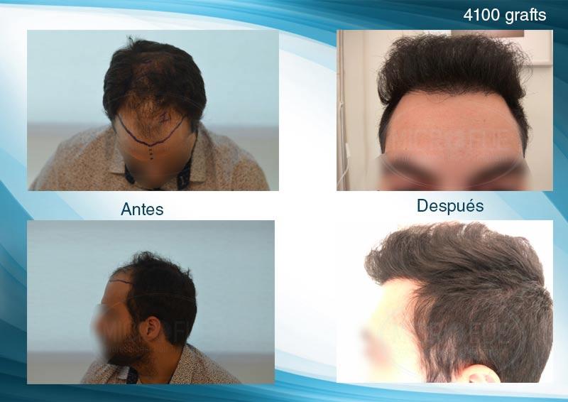 injerto capilar trasplante de pelo en Turquia FUE Microfue (2)