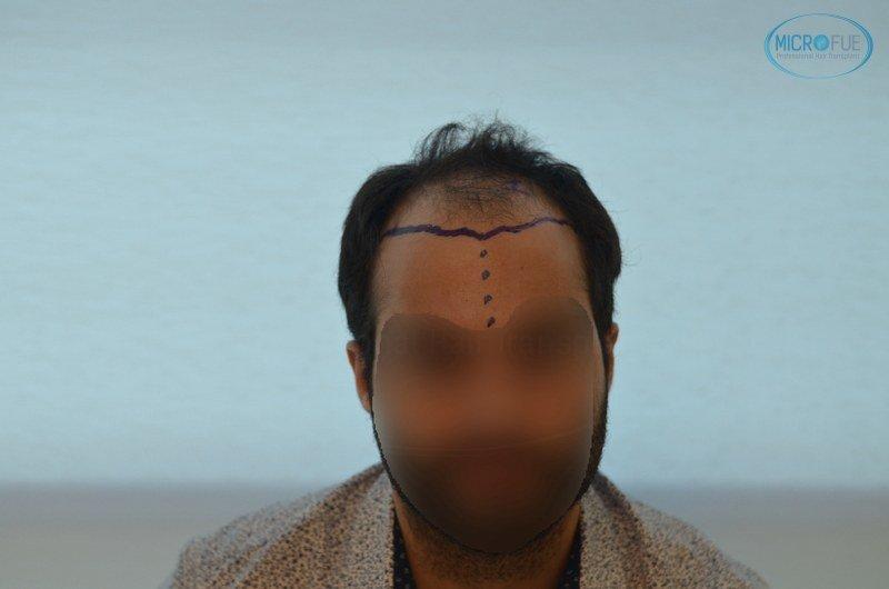 injerto capilar trasplante de pelo en Turquia FUE Microfue (3)