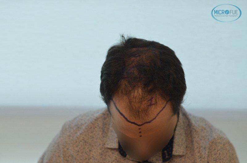 injerto capilar trasplante de pelo en Turquia FUE Microfue (4)