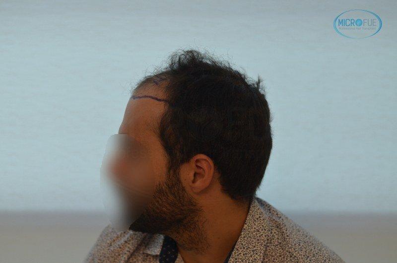 injerto capilar trasplante de pelo en Turquia FUE Microfue (5)