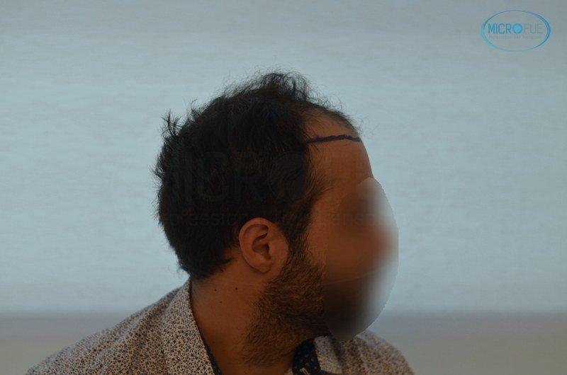 injerto capilar trasplante de pelo en Turquia FUE Microfue (6)