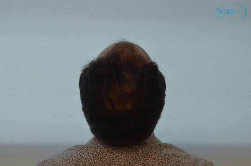 injerto capilar trasplante de pelo en Turquia FUE Microfue (7)