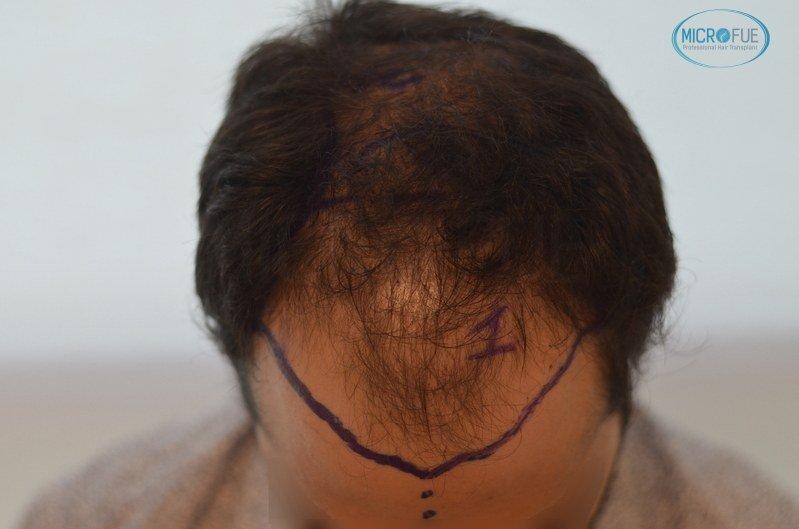 injerto capilar trasplante de pelo en Turquia FUE Microfue (8)