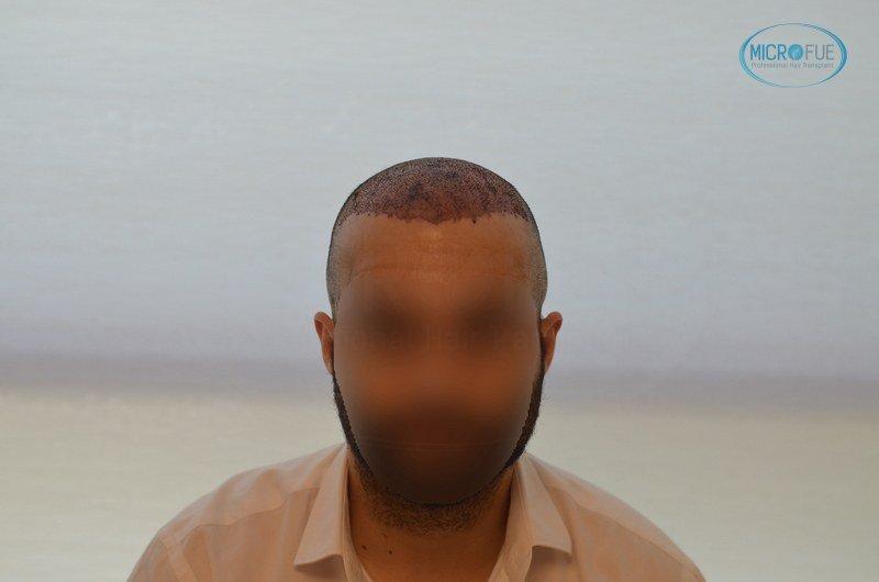 injerto capilar trasplante de pelo en Turquia FUE Microfue (9)