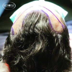 trasplante capilar en Turquía sin cortarse el pelo Microfue
