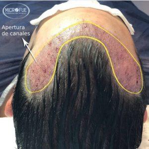 trasplante capilar en Turquía sin necesidad de cortar el pelo
