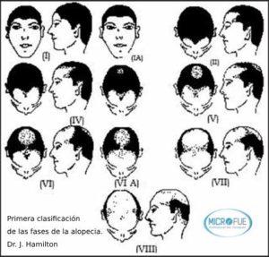 clasificación Hamilton grados de alopecia