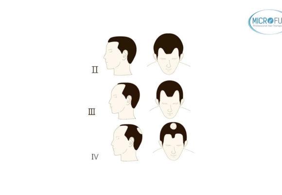 Grados de alopecia masculina: escala Hamilton y Norwood