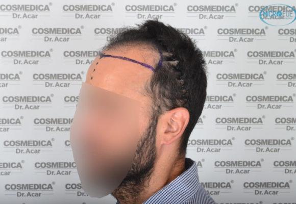 trasplante capilar en Turquía con Microfue resultados excelentes_12(1)