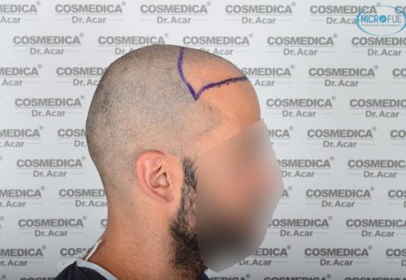 trasplante capilar en Turquía con Microfue resultados excelentes_14(1)
