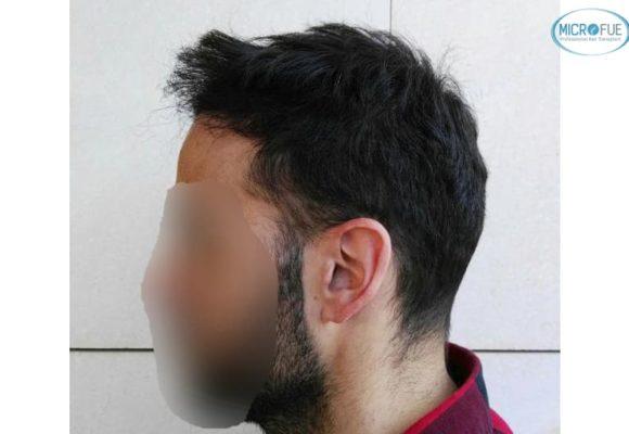 trasplante capilar en Turquía con Microfue resultados excelentes_2(1)