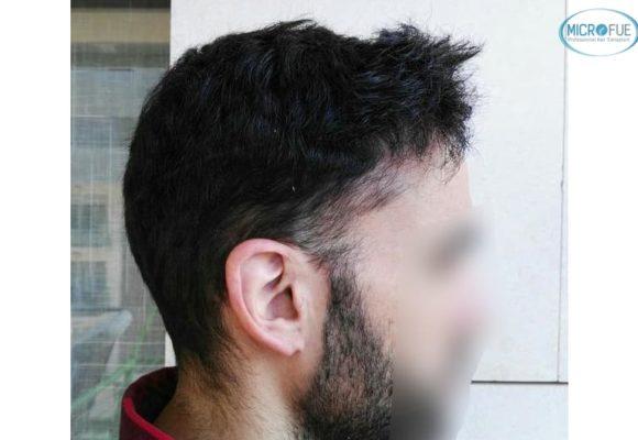 trasplante capilar en Turquía con Microfue resultados excelentes_4(1)