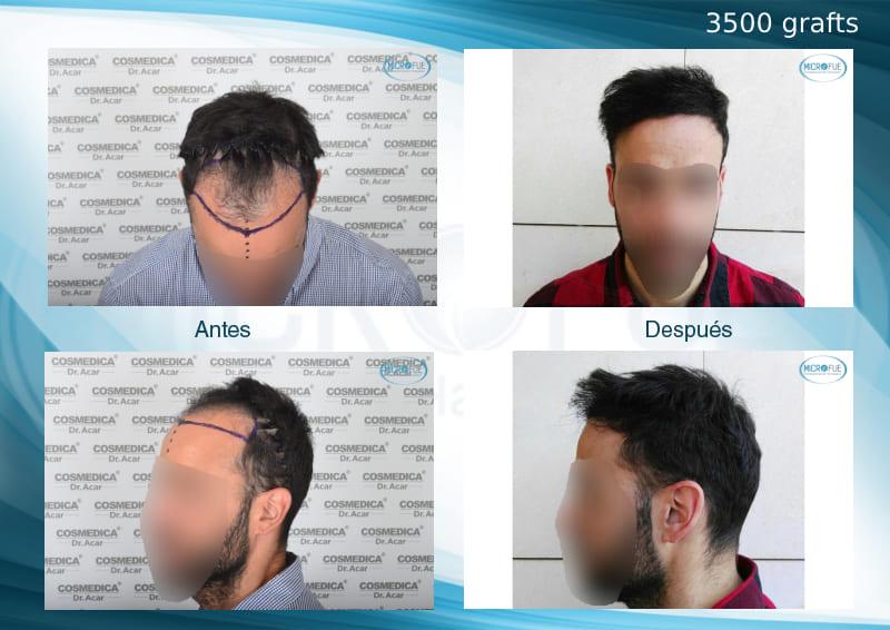 trasplante capilar en Turquía con Microfue resultados excelentes_3500_grafts