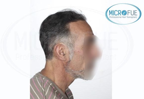trasplante capilar Microfue resultados Microfue