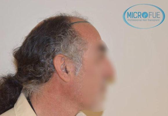resultados trasplante capilar en Turquía con Microfue
