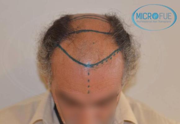 antes y después trasplante capilar en Turquía