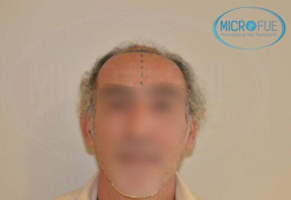 trasplante capilar alopecia avanzada