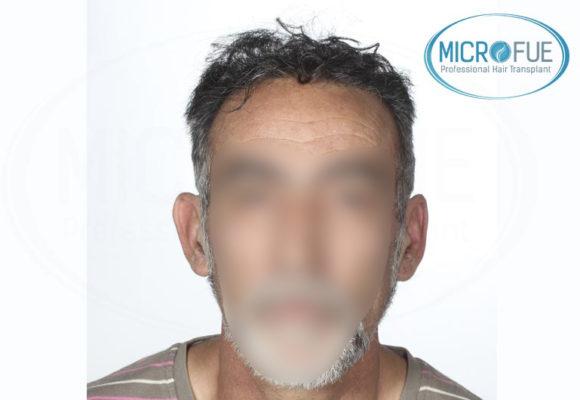 trasplante capilar en Turquía buenos resultados microfue