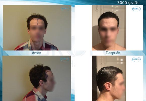 como es trasplante capilar sin cortar el pelo Microfue