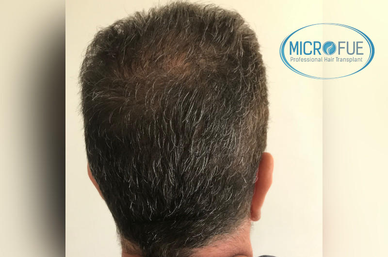 injerto capilar trasplante de pelo