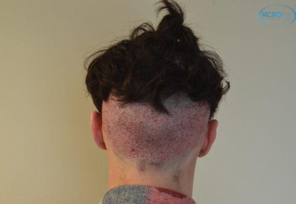 trasplante capilar sin cortar el pelo Microfue (12)