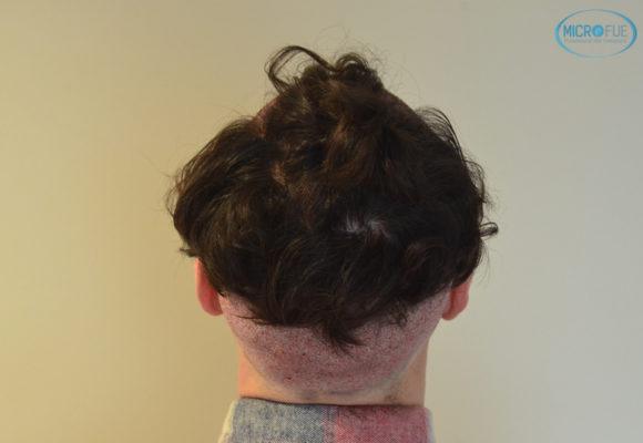 trasplante capilar sin cortar el pelo Microfue (13)