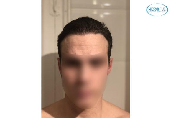 trasplante capilar sin cortar el pelo Microfue (14)