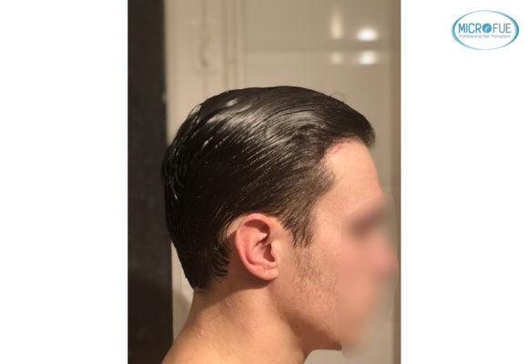 trasplante capilar sin cortar el pelo Microfue (15)
