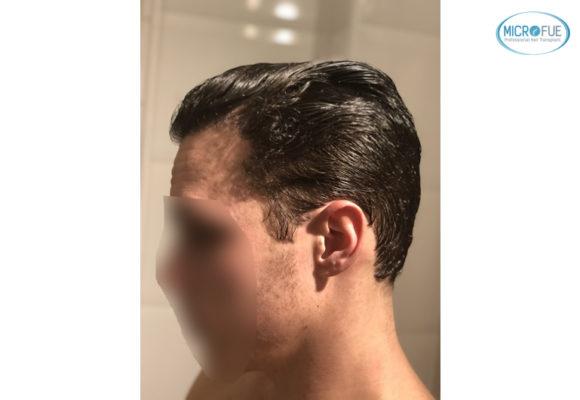 trasplante capilar sin cortar el pelo Microfue (16)