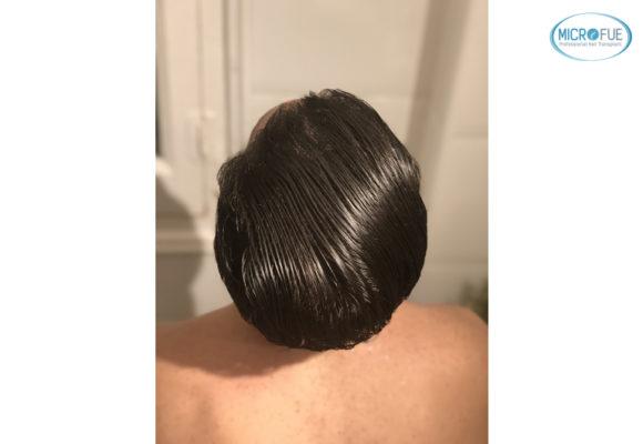 trasplante capilar sin cortar el pelo Microfue (17)