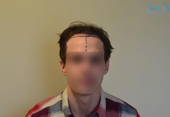 trasplante capilar sin cortar el pelo Microfue (2)
