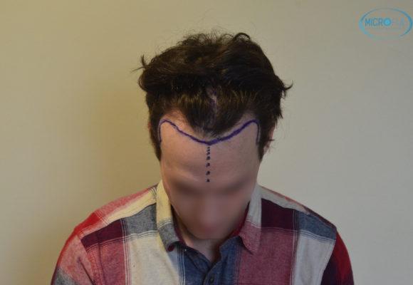 trasplante capilar sin cortar el pelo Microfue (3)