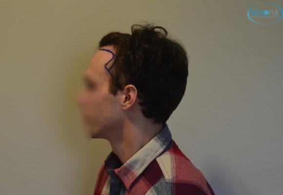 trasplante capilar sin cortar el pelo Microfue (4)