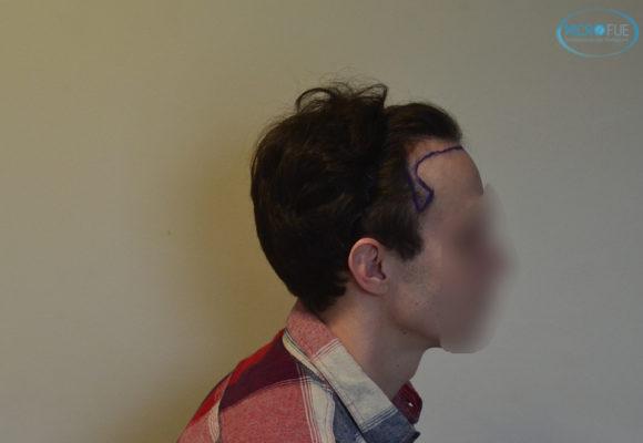 trasplante capilar sin cortar el pelo Microfue (5)