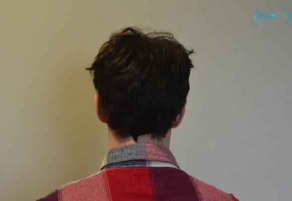 trasplante capilar sin cortar el pelo Microfue (6)