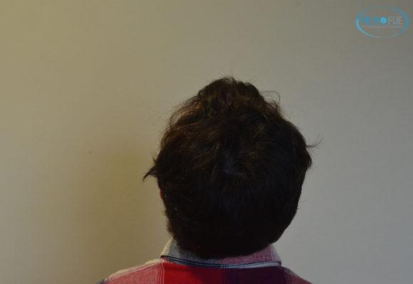 trasplante capilar sin cortar el pelo Microfue (7)