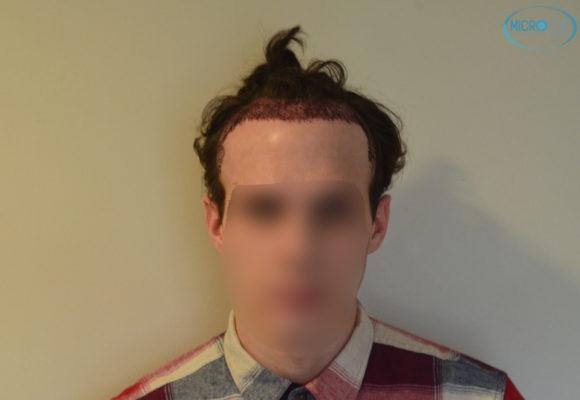 trasplante capilar sin cortar el pelo Microfue (8)