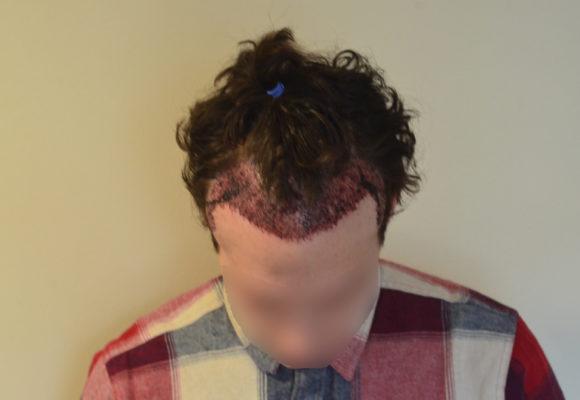 trasplante capilar sin cortar el pelo Microfue (9)