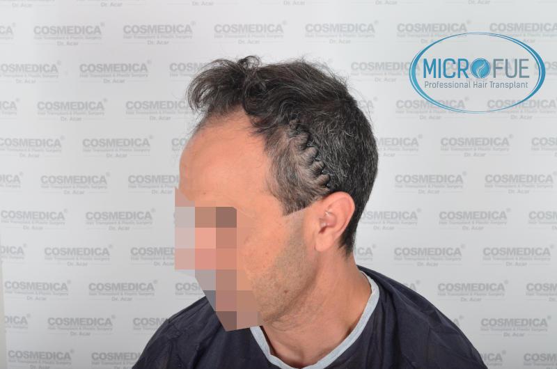 Evolución de trasplante capilar microfue