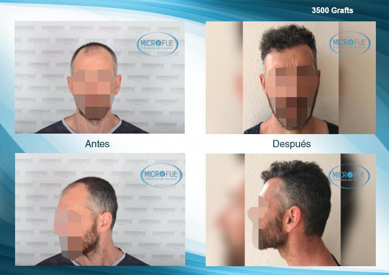 antes y despues injerto capilar trasplante de pelo mejor clinica