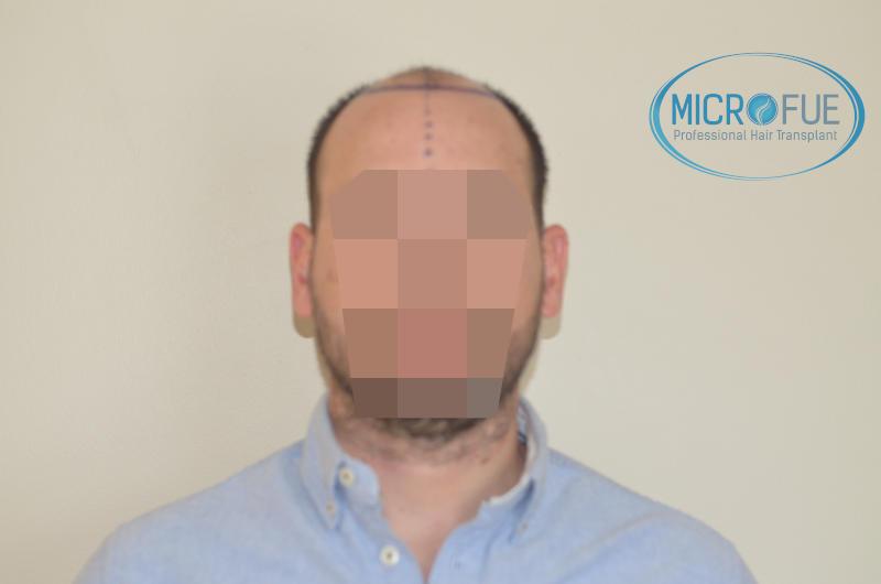 foto resultado trasplante de pelo turquia