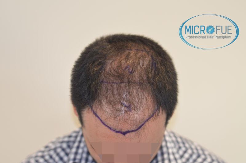 Trasplante de pelo en Turquia - Antes y después